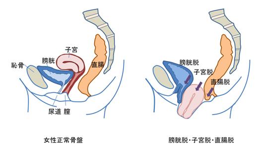 脱 手術 後 子宮