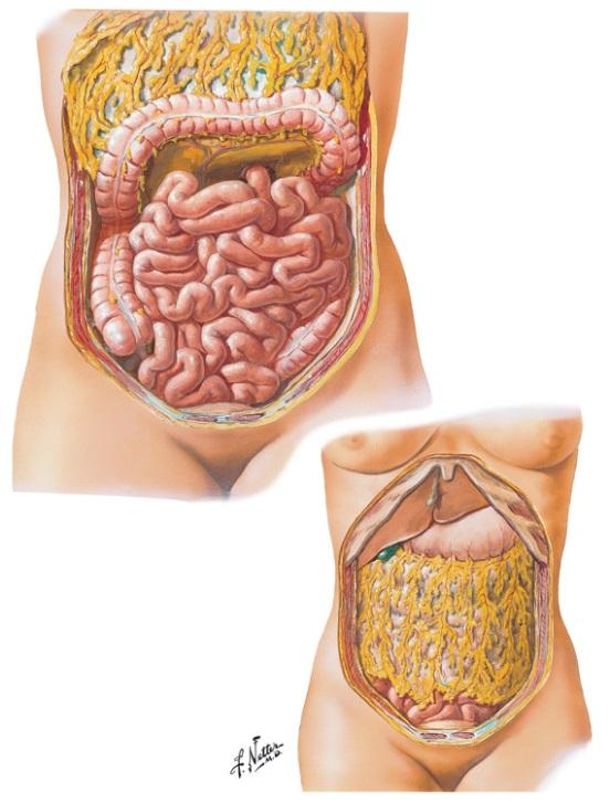 嚢腫 手術 卵巣